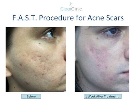 10 Ways To Treat Acne Scars by Ask The Expert What Is The Best Treatment For