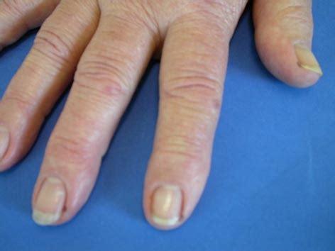 rheuma der inneren organe anzeichen symptome 187 rheumatoide arthritis 187 krankheiten