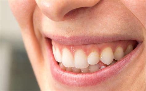 Category: Cosmetic Dentistry   Covington, LA   Magnolia Dental