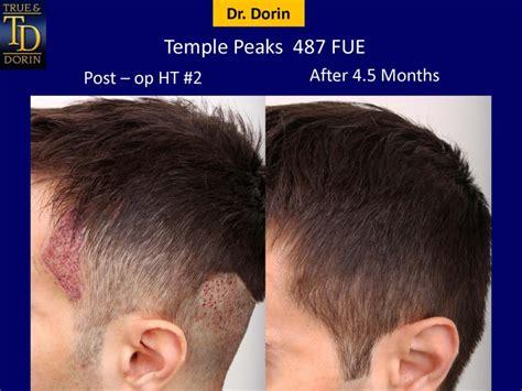 temple hair transplantation temple peaks temple peaks