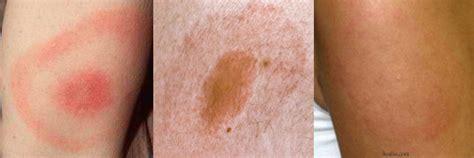 what does lyme disease look like on a what does lyme disease look like 46 best tick bites images on lyme disease
