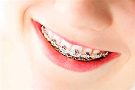 apparecchio interno denti costo tipos de aparatos para los dientes brackets dental brenes