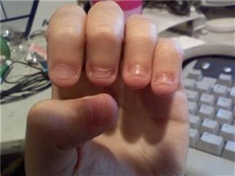 Do You Bite Your Nails by Do You Or You Bitten Your Nails Answer