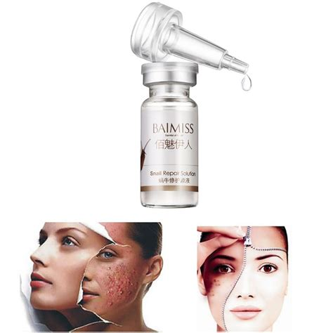 Acne Serum 10ml 10ml moisturizers snail repair dope snail liquid printed whitening acne serum concentrate