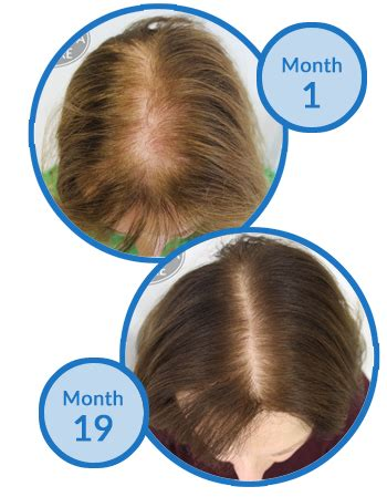 spironolactone and female pattern hair loss spironolactone hair regrowth the best hair of 2018