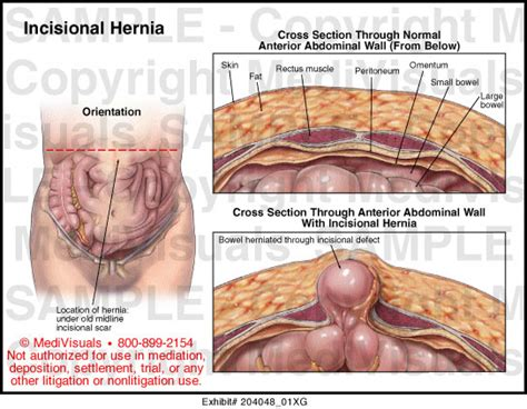 hernia from c section incisional hernia medical illustration medivisuals