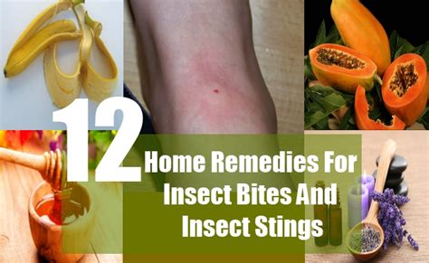 12 home remedies for insect bites and insect stings