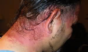 allergic reaction to hair color dangerous hair dye june 5 2009 hair dye allergy reaction