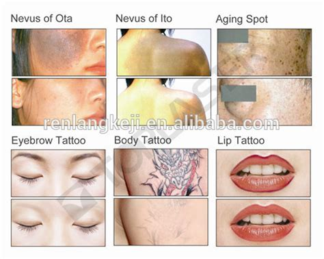 alexandrite laser tattoo removal alibaba express q switch nd yag laser removal