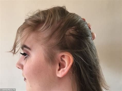 hair loss behind ears women this woman started to go bald aged 13 so she did something
