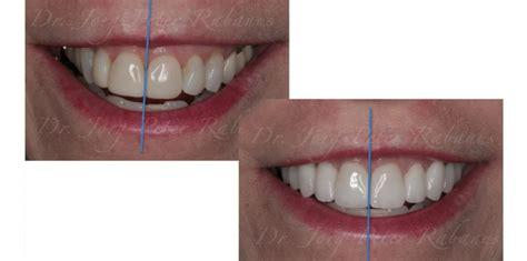 blog posts cosmetic dentistry san francisco