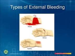 ppt controlling bleeding powerpoint presentation id 669107