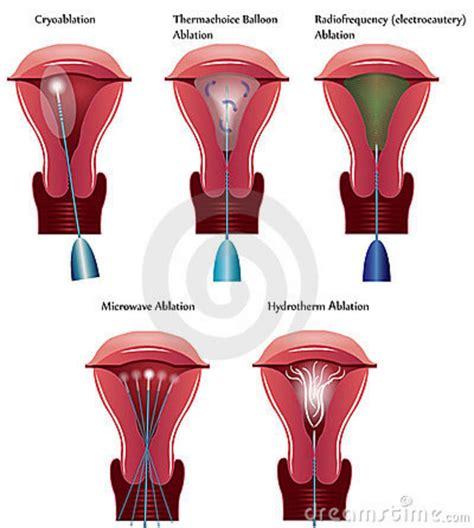 sle of uterine lining uterus ablation procedures royalty free stock photography