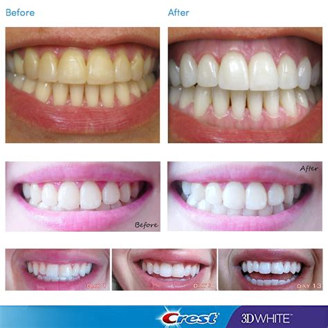 crest whitestrips supreme review crest 3d white luxe professional whitening effects 5
