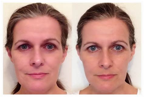 30 day water challenge before and after the benefits of 30 days of water clean