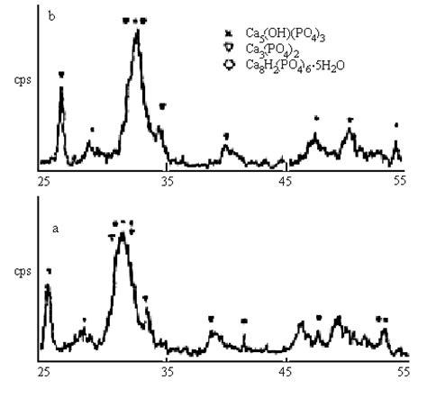 xrd pattern of calcium carbonate 02b052ne