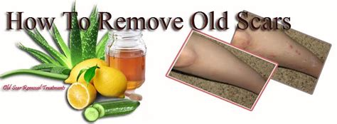 remove scars from legs herbal acne treatment recipe
