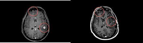 istituto besta neurochirurgia 2 metastasi cerebrale dott paolo ferroli direttore u o