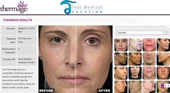 How Much Does A Face And Neck Lift Cost by Non Surgical Thermage Cpt Skin Laser Facelift Rf Therapy