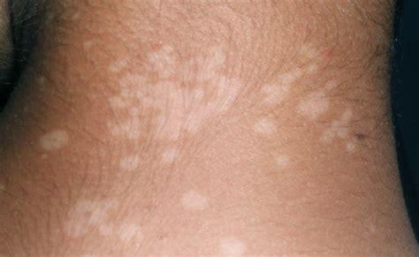 Obat Herbal Agarillus tips alami menghilangkan panu di wajah lotion penghilang