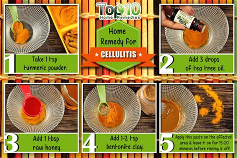 Home Remedies For Cellulitis by Home Remedies For Cellulitis Top 10 Home Remedies