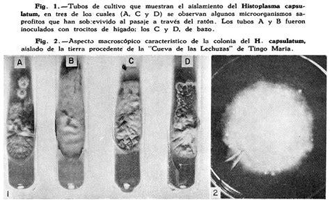 histoplasmosis in dogs ocular histoplasmosis in dogs ocular histoplasmosis in dogs
