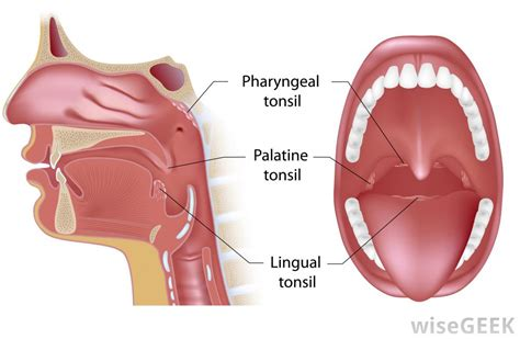 posterior pharynx  pictures