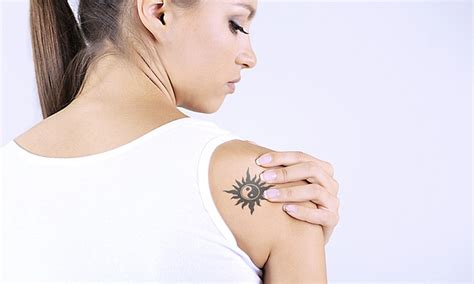 tattoo removal deal hd esthetique at gables up to 72 miami fl groupon