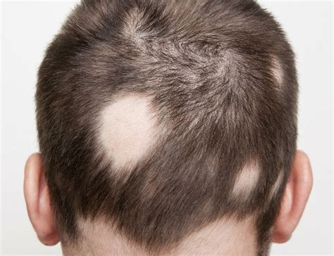 Hair Disease Types by Are You Suffering From Alopecia Areata Hair Transplant Abroad