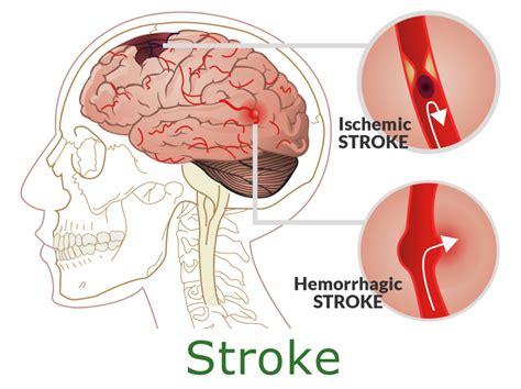 Obat Herbal Sps obat stroke menahun terbukti manjur menyembuhkan stroke