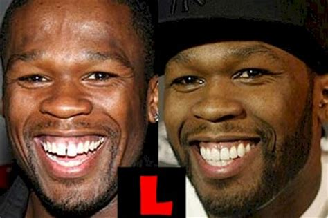 News Gives 50 As Tooth fiddy 50 cent teeth