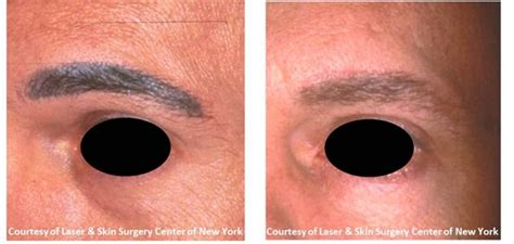 surgical excision tattoo removal how much does eyebrow removal cost the of