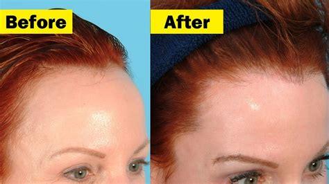 how to cut womens hair balding spots hair growth how to make hair grow in bald spots bald
