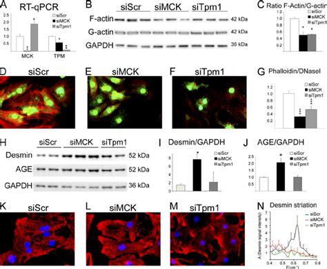 m line creatine kinase inhibition of creatine kinase leads to desmin network