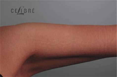 before and after stretch marks on arm 8