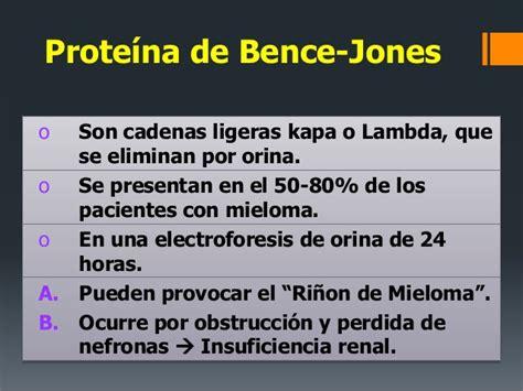 mieloma de cadenas ligeras o de bence jones mieloma m 250 ltiple