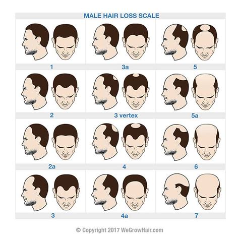 male pattern hair loss solutions norwood scale hair loss chart for men with male pattern