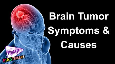 only had a brain commercial who sings it brain tumor symptoms and causes youtube