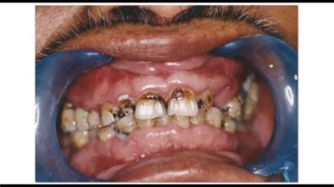 imagenes de heridas asquerosas las 5 enfermedades mas asquerosas de la boca youtube