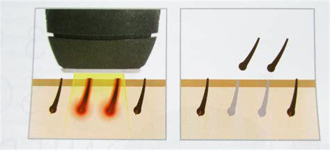 lasergerät haarentfernung für zuhause smoothskin gold ipl hair removal dauerhafte