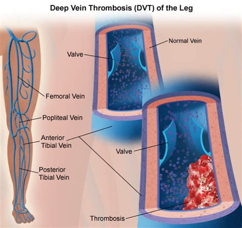 vein thrombosis treatment symptoms