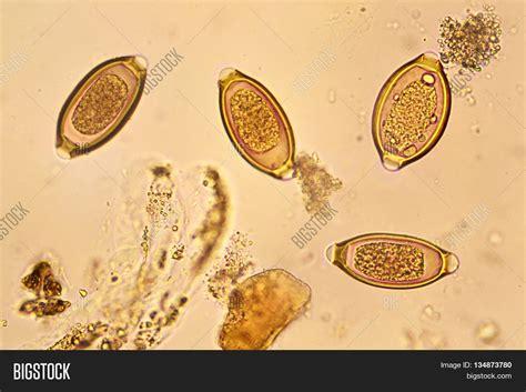 egg helminth stool analyze by image photo bigstock