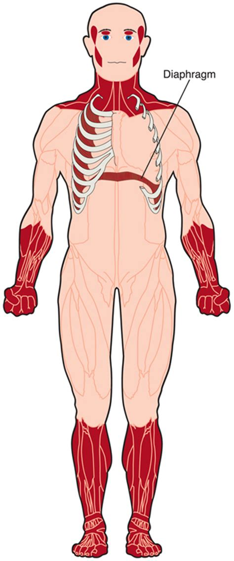 myotonic dystrophy pattern of weakness myotonic disorders myopathies myotonic myotonia