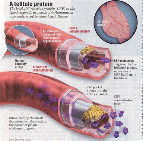 c protein reactive test high 8 tests that you should about