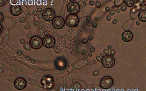 candida albicans alimentazione candidosi infezione da candida albicans causa cure e i