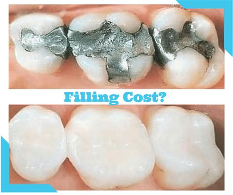 how much do cost how much does a dental filling cost worldwide with without insurance disadvantages