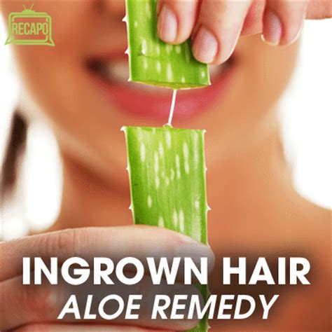 dr oz to prevent ingrown hairs aloe home treatment