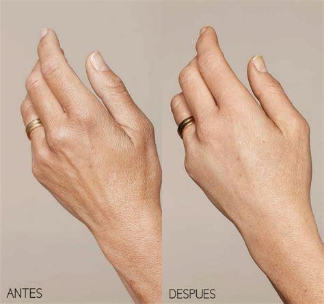 de la mano de rejuvenecimiento de manos cl 237 nicas vitaluz virgen de la luz