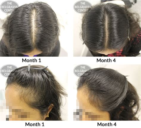 female pattern hair loss guidelines success story alert new female hair loss treatment entry