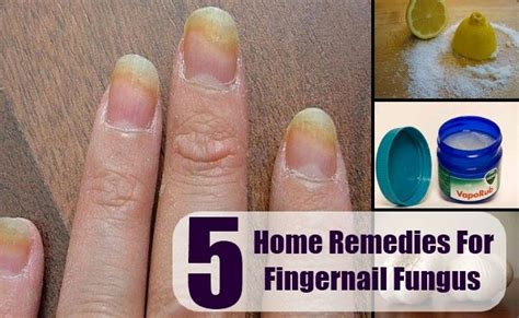 fingernail fungus home remedy remedy treatments